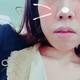 Mio_mm